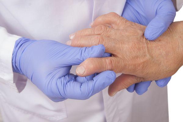 Ревматоидный артрит не лечится самостоятельно
