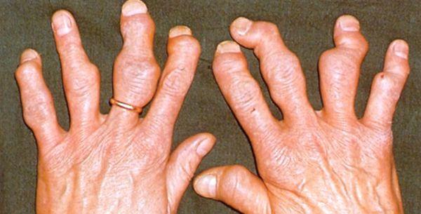 Тофусы при подагре требуют комплексного лечения