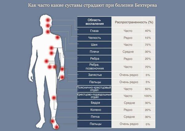 Болезнь бехтерева боль в суставах простудил коленный сустав
