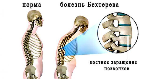 Болезнь Бехтерева – это поражение крестцово-подвздошного сочленения позвоночника