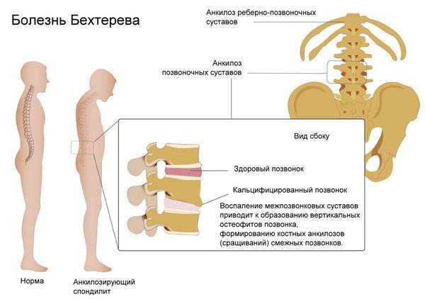 Проявление болезни Бехтерева