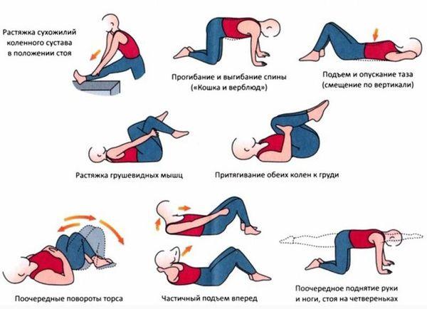Лечебная физкультура при поясничном радикулите