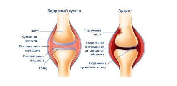 Изображение - Артрит коленного сустава народные методы 1
