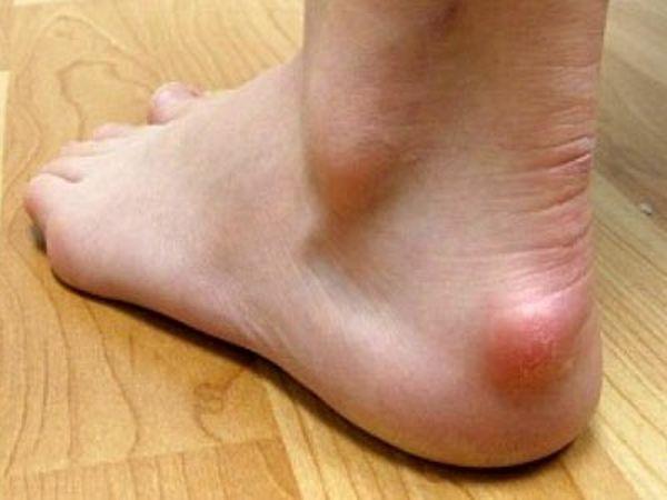Ахиллобурсит что за болезнь Причины симптомы и лечение