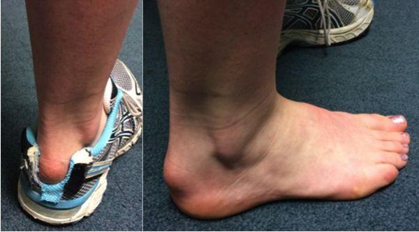 Ахиллобурсит возникает вследствие травматизации