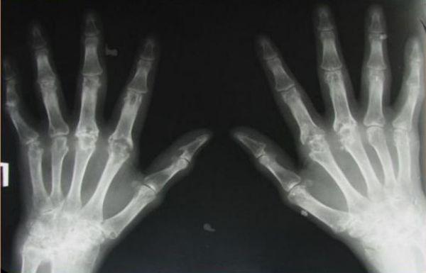 Стадии ревматоидного артрита на рентгене: расшифровка