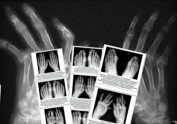 Рентгенодиагностика ревматоидного артрита