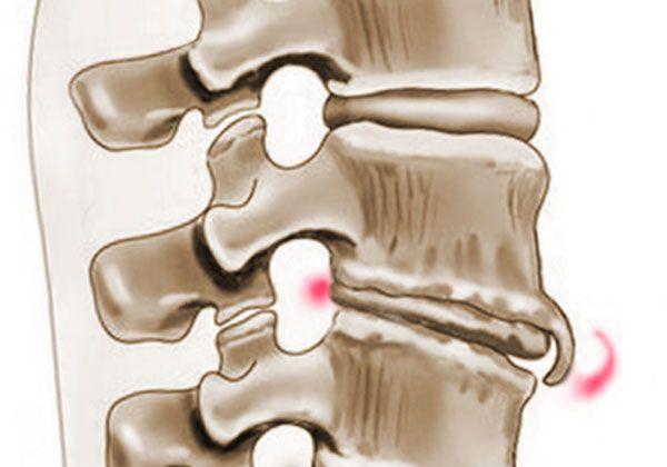 Спондилез грудного отдела позвоночника - сложный патологический процесс