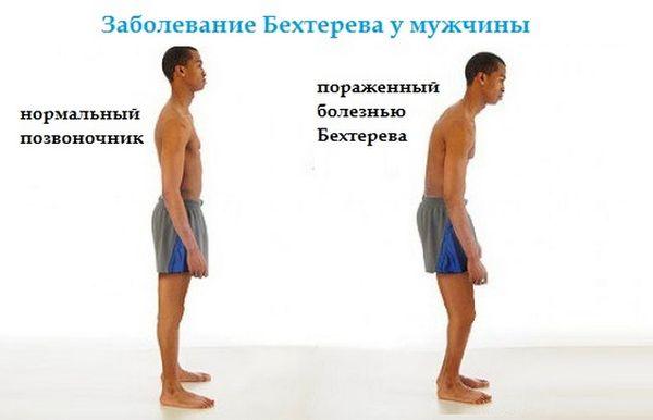 Заболевание Бехтерева у мужчины