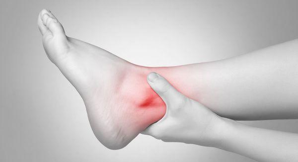 Хронический бурсит возникает при больших нагрузках на сустав