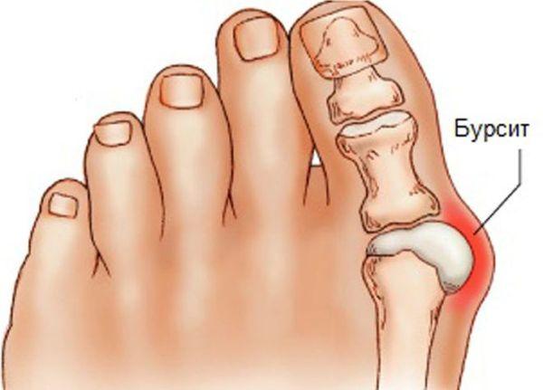 Как лечить бурсит большого пальца ноги