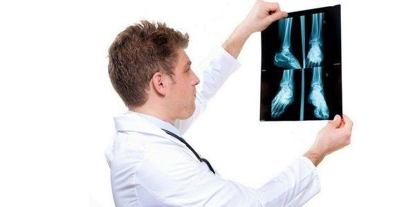 Лечение бурсита назначает врач после диагностики