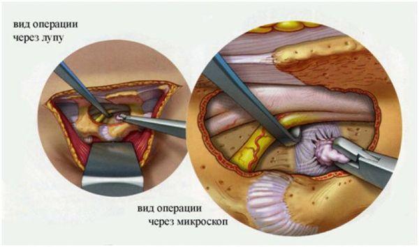 Удаление грыжи операционное