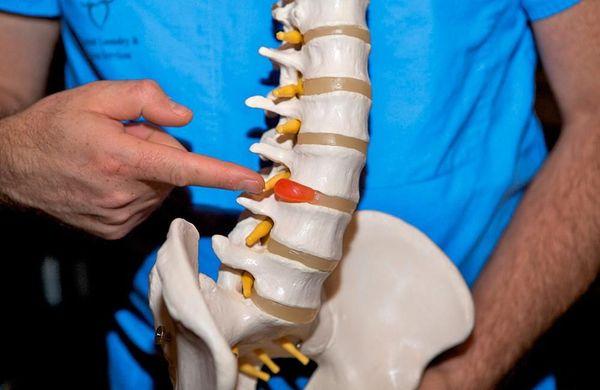 Межпозвонковая грыжа лечение без операции