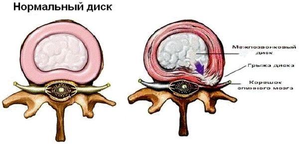Нормальный диск и поврежденный грыжей