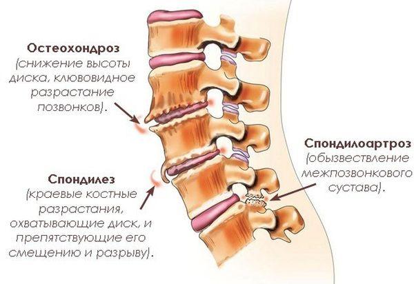 25% населения мира страдает от остеохондроза