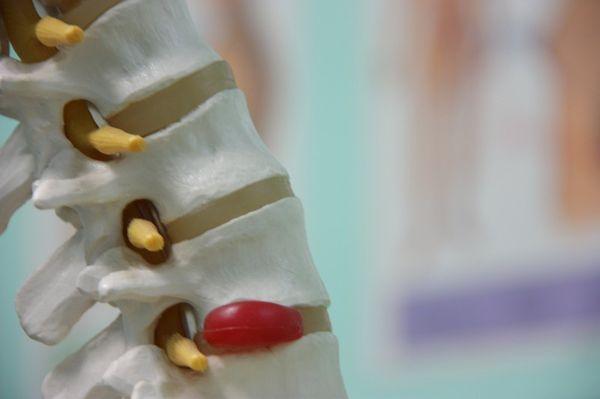 Протрузия и грыжа сопровождаются болью