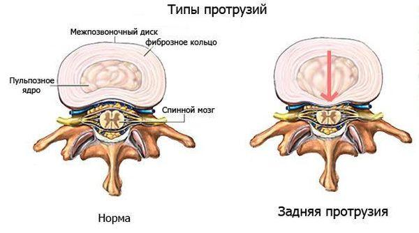 Задняя протрузия диска