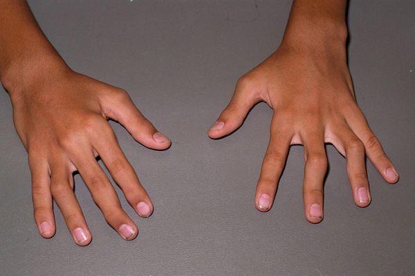 При артрите 3 степени наблюдается деформация суставов