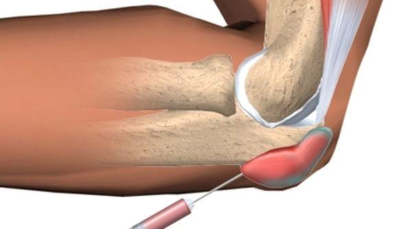 Гнойный бурсит локтевого сустава: лечение, симптомы и причины