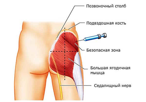 Инъекции при защемлении седалищного нерва