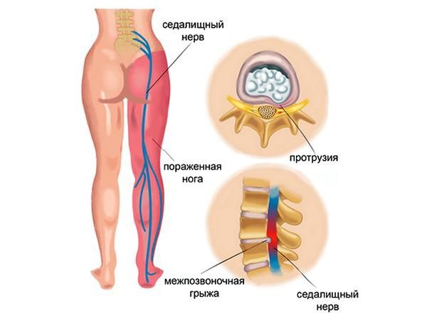 Частая причина воспаления - протрузия или грыжа межпозвонкового диска