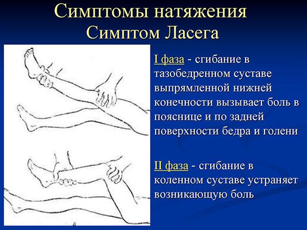 Воспаление седалищного нерва сопровождается симптомом Ласега