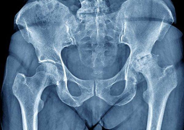 Остеопороз тазобедренный сустав суставы картинках