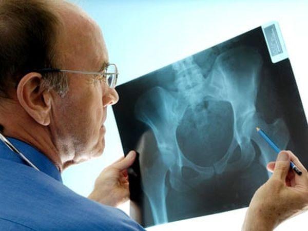 Лечение и симптомы остеопении тазобедренного сустава