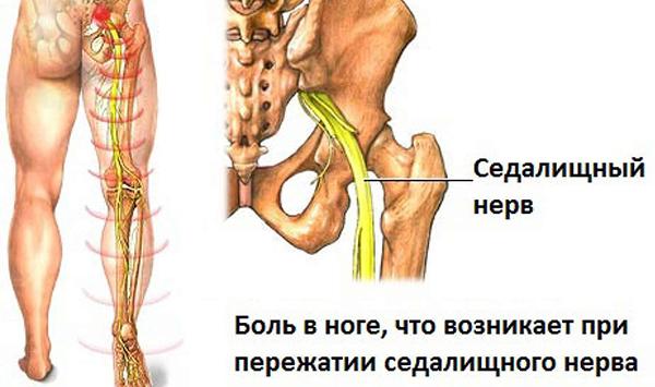 Схема расположения седалищного нерва