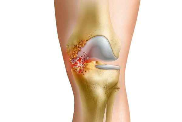 Что такое гнойный артрит суставов и как его лечить