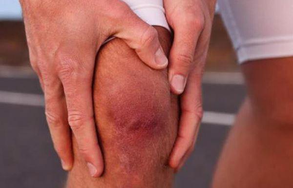 Артрит 2 степени проявляется более выраженной болевой симптоматикой