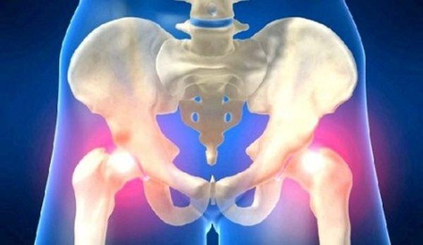 Последняя стадия остеопороза сустава проявляется атрофией мышц