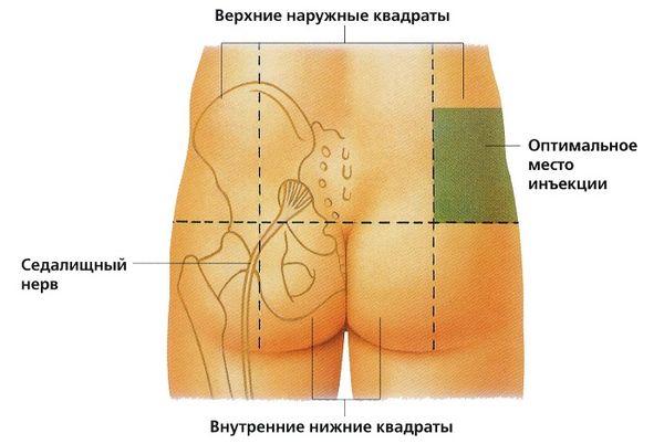 Расположение седалищного нерва