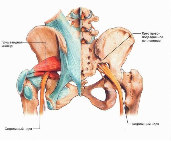 Повреждение седалищного нерва