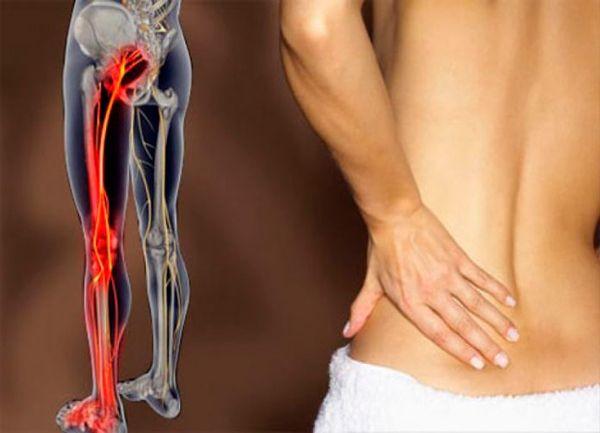 Повреждение седалищного нерва сопровождается болью
