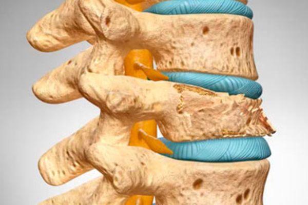 Диффузный остеопороз особенности борьбы с заболеванием