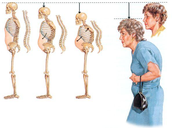 Остеопороз – это патология опорно-двигательной системы