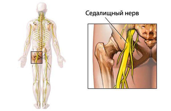 Неврит седалищного нерва