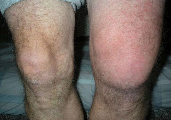 Реактивный синовит коленного сустава лекарства от боли в суставах колена