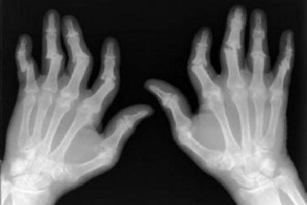 4 стадия артрита характеризуется анкилозом