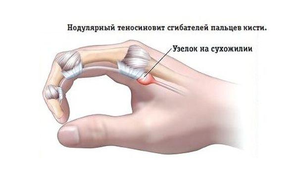 Нодулярный теносиновит сгибательных пальцев кисти