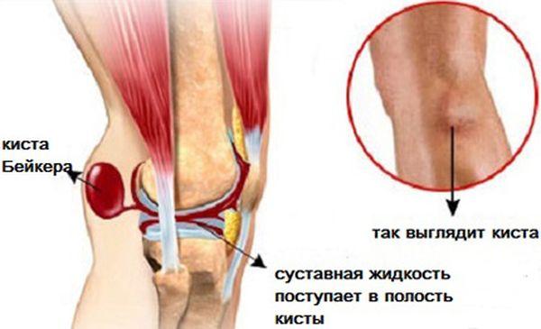 Как выглядит киста Бейкера коленного сустава