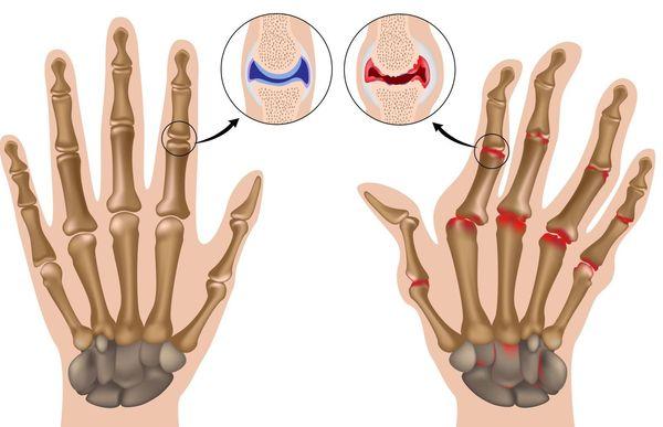 Нормальный сустав и пораженный артритом