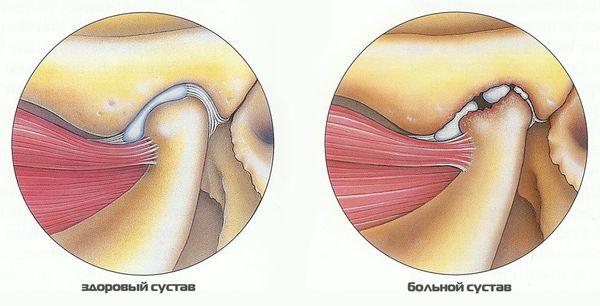Височный тендинит – это воспаление сухожилий жевательных мышц