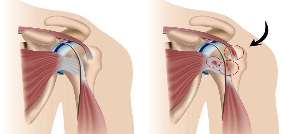 Эпикондилит плеча – острый воспалительный процесс тканей надмыщелков
